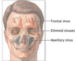 Sinusitis: Ayurveda Management